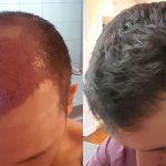 احدث تقنية لزراعة الشعر 2018