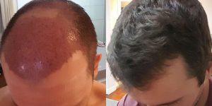احدث طرق زراعة الشعر فى مصر