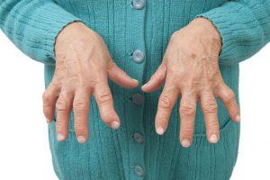 مرض الروماتويد وعلاجه بالاعشاب