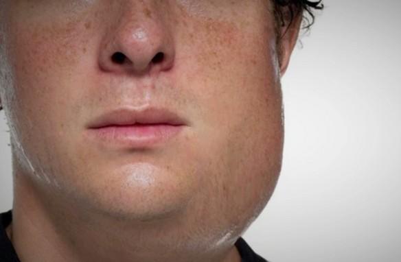 مرض النكاف وعلاقته بالعقم عند الرجال