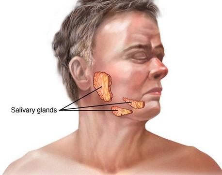 Photo of مرض النكاف وعلاقته بالعقم عند الرجال