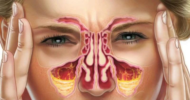 أسباب حساسية الأنف المزمنة:
