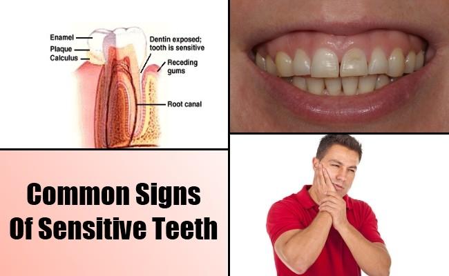 علاج حساسية الاسنان