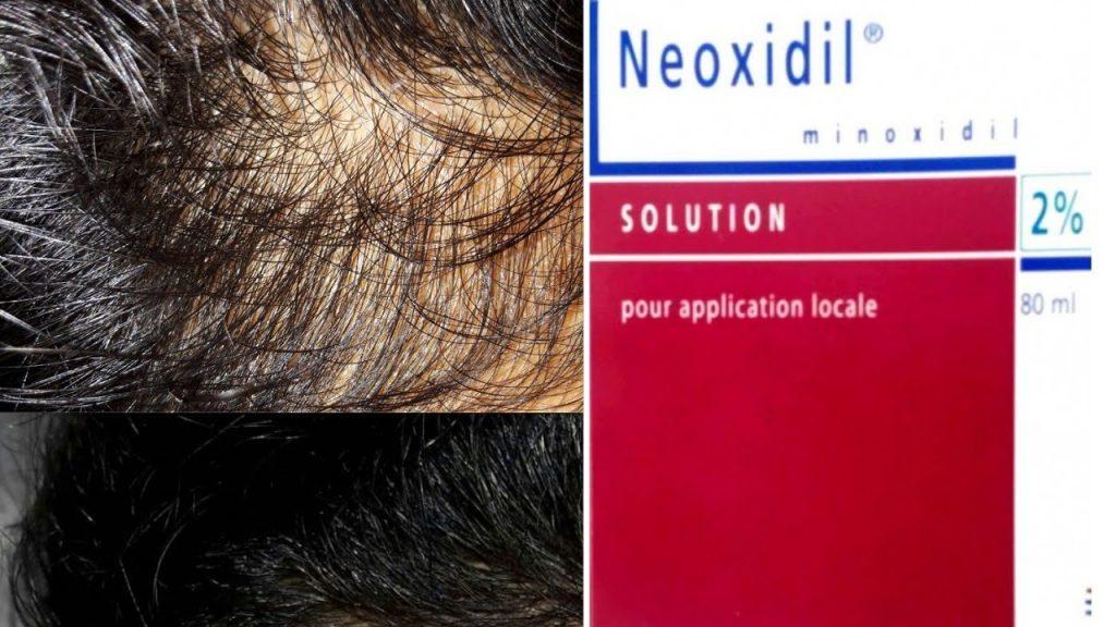 سعرنيوكسيديل بخاخة NEOXIDIL
