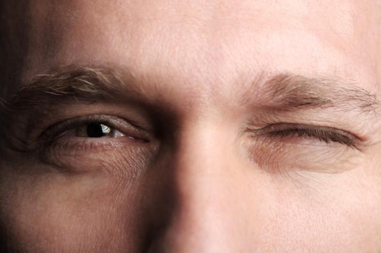 رفة العين وطرق العلاج