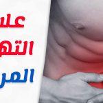 علاج التهاب المرارة بالاعشاب والاعراض المصاحبة لها
