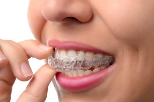 أفضل طرق تقويم الأسنان