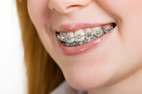 Photo of أفضل طرق تقويم الأسنان وما هى أنواعه