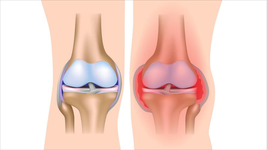 علاج التهاب العظام و الغضروف