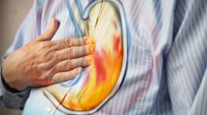 علاج الحرقان الصدري
