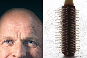 علاج الصلع الوراثي