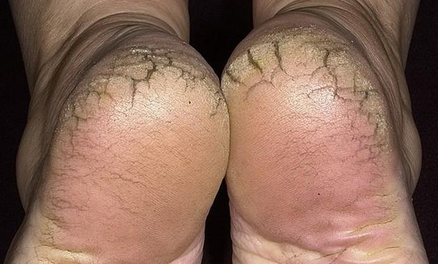 علاج تشقق القدمين بالاعشاب