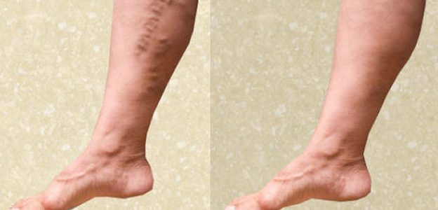 علاج دوالي الساقين