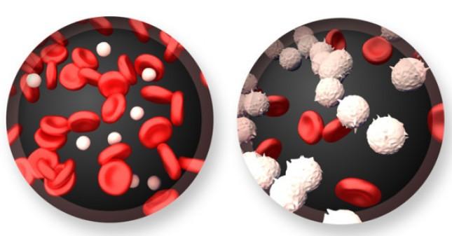 علاج سرطان الدم بالاعشاب