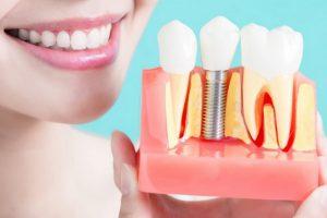 عملية زراعة الأسنان وأهم تفاصيلها
