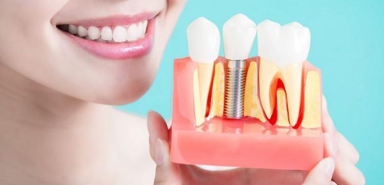 Photo of عملية زراعة الأسنان وأهم تفاصيلها