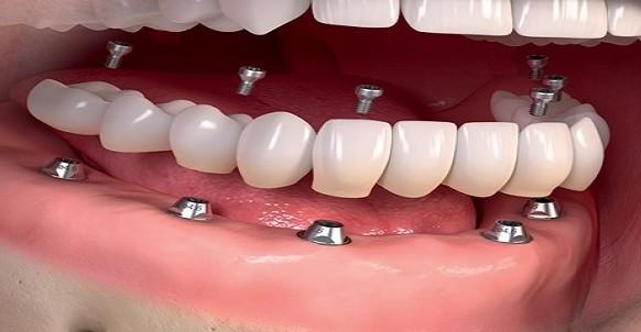 عملية زراعة الأسنان