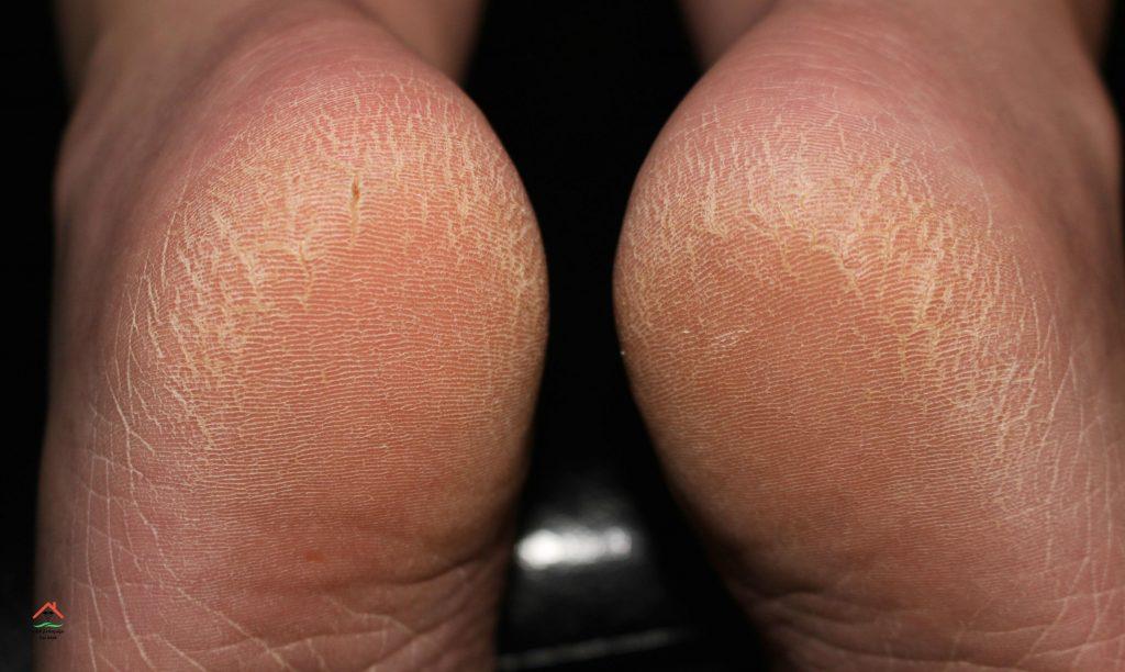 علاج تشقق القدمين في يومين فقط