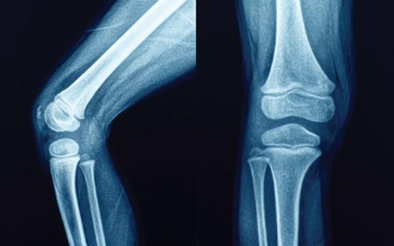 Photo of علاج التهاب المفاصل بالأعشاب وأهم الأسباب التي تسبب آلام المفاصل