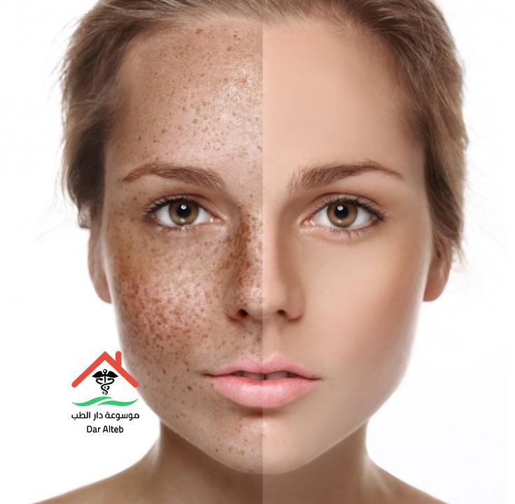 علاج النمش بطرق مضمونة ومجربه وأسباب ظهور النمش في الوجه