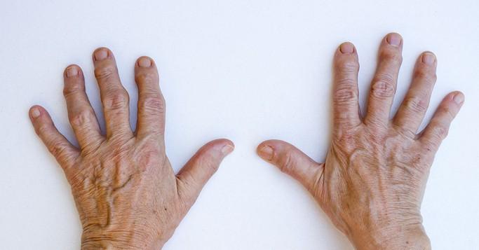 التهاب المفاصل اسبابه وعلاجه