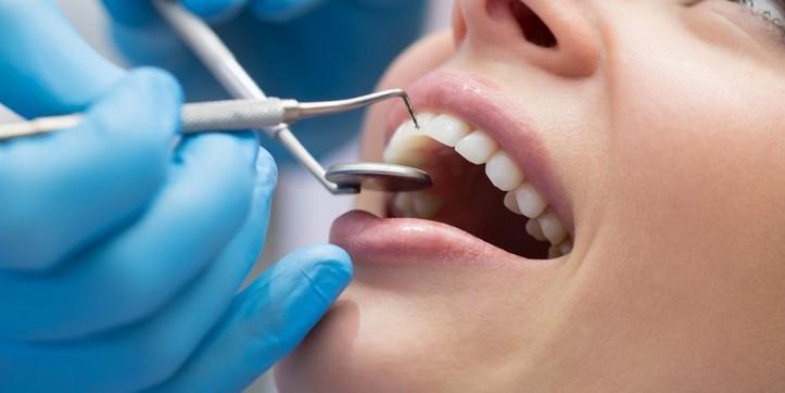 Photo of انواع تجميل الاسنان