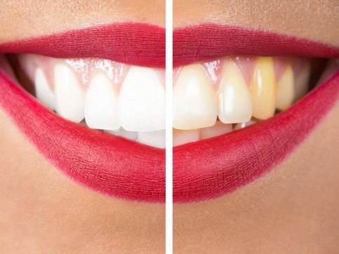تجميل الاسنان