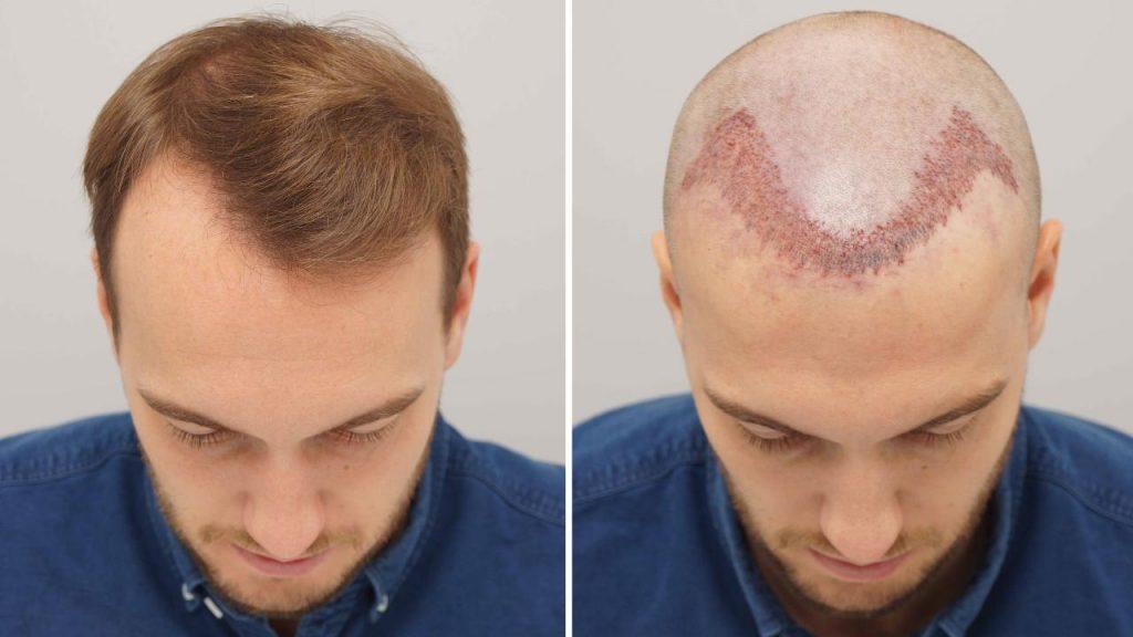 زراعة الشعر بالاقتطاف