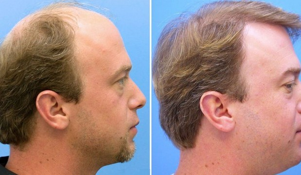 Photo of زراعة الشعر في تركيا تعرف على التكلفة واهم الاماكن