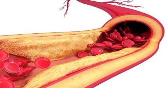 Photo of ماهي اعراض الدهون الثلاثية وطرق علاجها