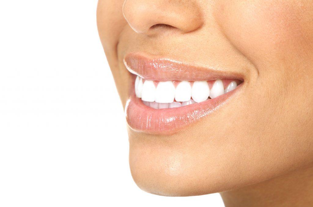Photo of اضرار تبييض الاسنان 7 أضرار يجهلها الجميع