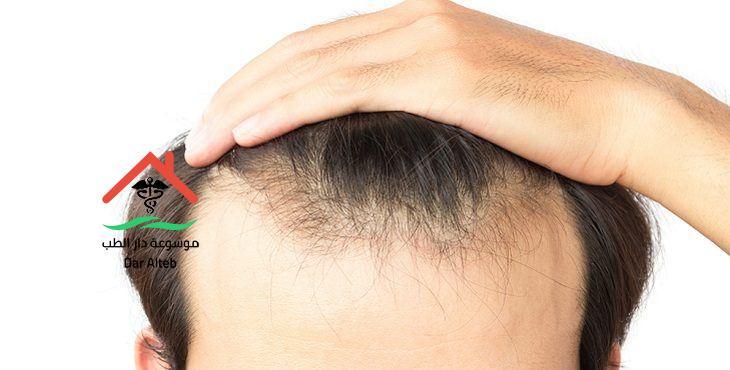 Photo of عملية زراعة الشعر وتكلفة زراعة الشعر