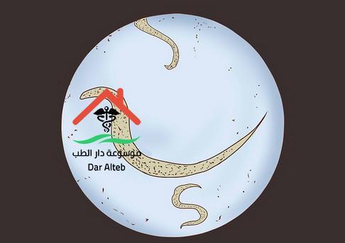 Photo of علاج الدودة الدبوسية عند الاطفال والكبار