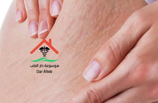 علاج السيلوليت بالاعشاب