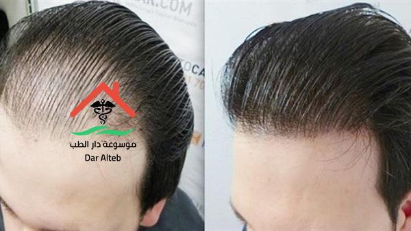 عملية زراعة الشعر وتكلفة زراعة الشعر