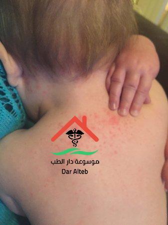 Photo of علاج الالتهاب الخلوي وأعراضه والأسباب التي تؤدي إليه