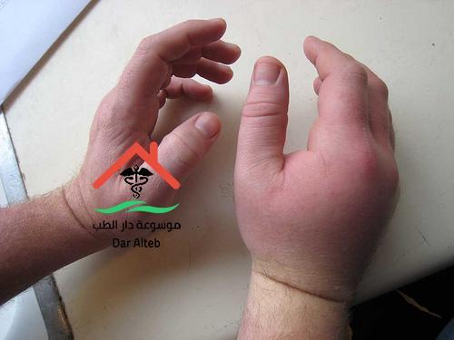 Photo of أسباب تورم اليدين والأصابع وطرق العلاج والتخلص منها نهائيا