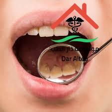 Photo of أسباب تسوس الأسنان رغم تنظيفها ونصائح للوقاية من الإصابة بالتسوس