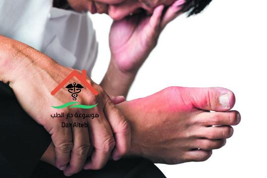 Photo of اسباب النقرس واعراضه وطرق العلاج
