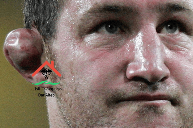 Photo of علاج الأذن القرنبيطية وما هي أسباب الإصابة بها وما هي أعراضها