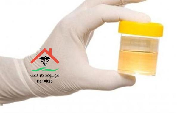 طرق علاج حرقان البول