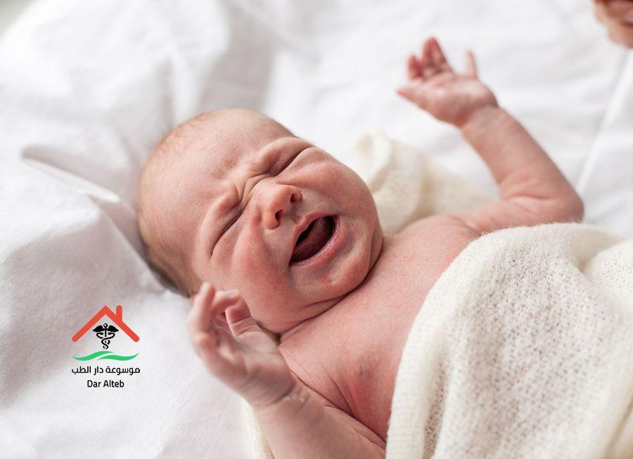Photo of الزغطة عند الاطفال ما هى الأسباب وكيفية العلاج