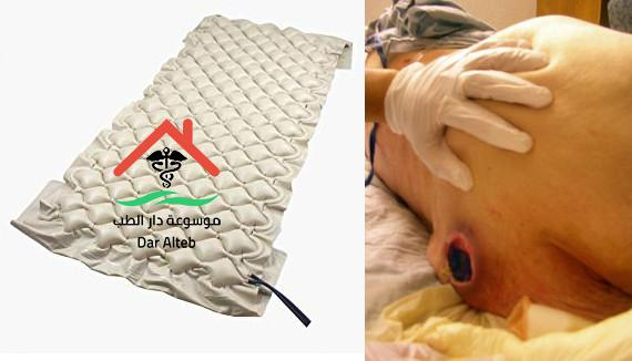 Photo of علاج قرحة الفراش بالوسائل الطبيعية