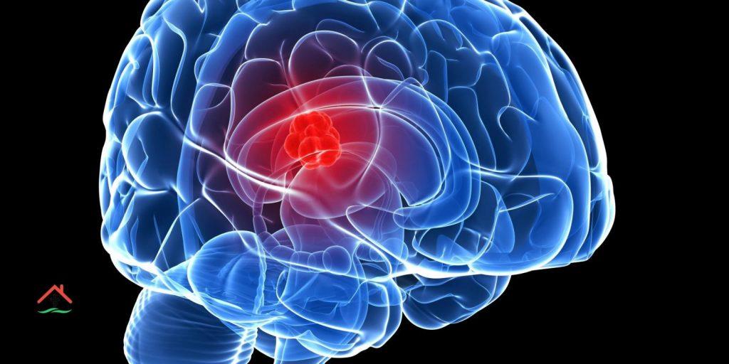 أورام المخ أسبابها وطرق الوقاية منها