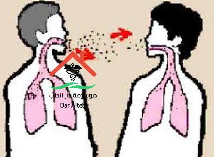 مرض السل اسبابه وطرق الوقاية والعلاج