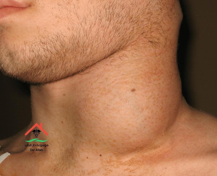 Photo of سرطان الغدد الليمفاوية أعراضة وطرق الوقاية منه