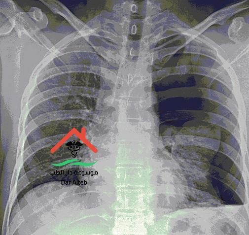 تليف الرئة أسبابة وأعراضه وهل هو معدي موسوعة دار الطب