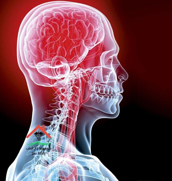 الأكثر عرضه للجلطات الدماغية
