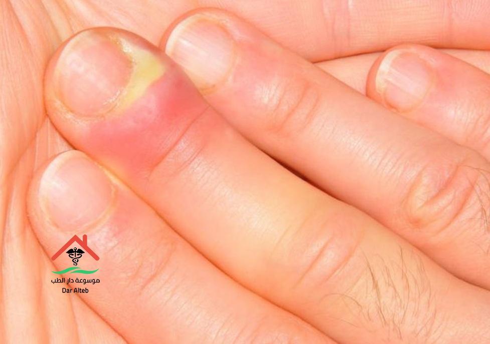علاج الإصبع المدوحس بالمواد الطبيعية