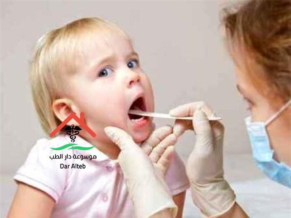 علاج اللوز